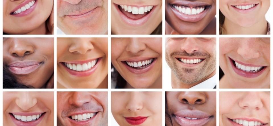 impianti dentali roma prima dopo