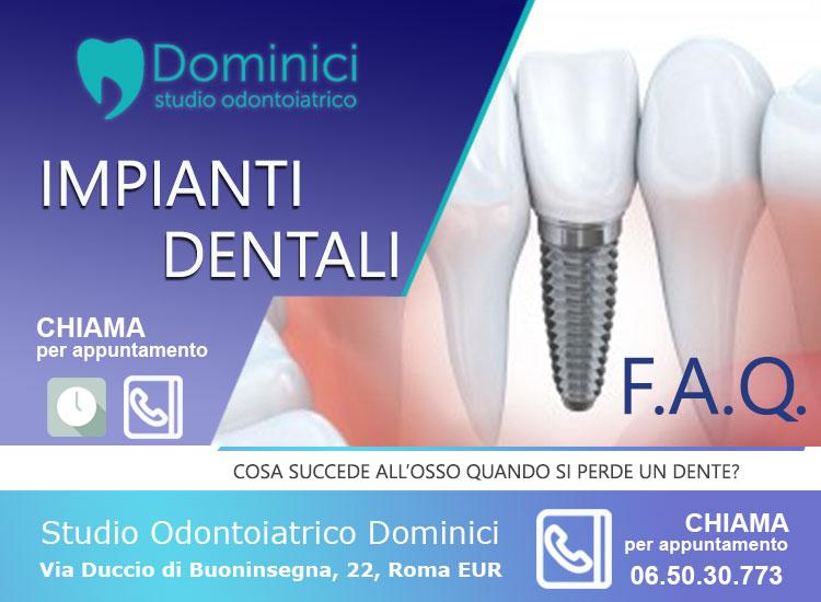 impianti dentali roma Dominici Via Duccio di Buoninsegna, 22, 00142 Roma RM